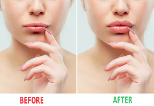 Fillers for lip augmentations are now approved!