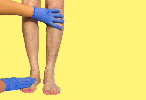 Skin Cell Spray to Treat Venous Leg Ulcers?