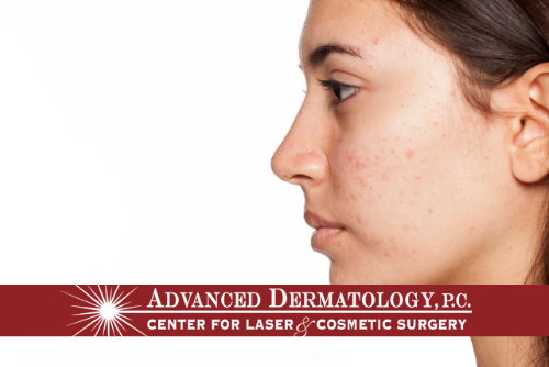Announcing New Acne Therapy and Treatment at Advanced Dermatology's Simply Posh Aesthetic Spa