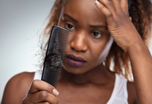 African Americans At Risk For Hair Loss; Explaining Traction Alopecia