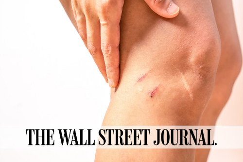 Treating Scars: Which Remedies Work Best?
