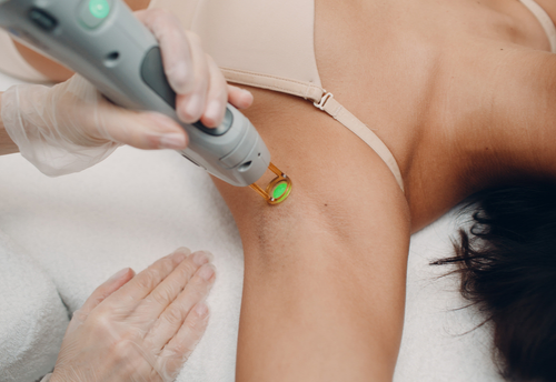 Laser Hair Removal: No Pain, Pure Gain