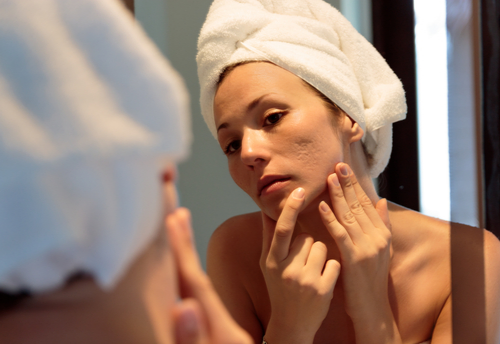 Acne Treatment – How Long Will You Really Need?