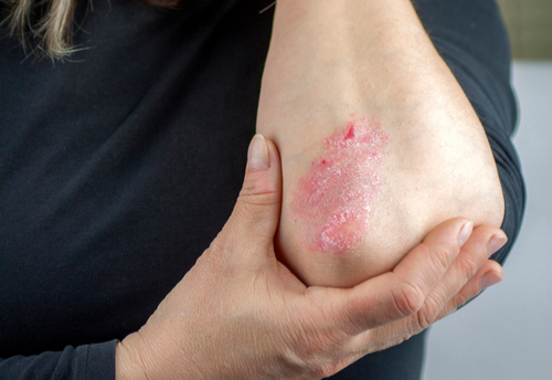 Many Psoriasis Sufferers Discontinue Treatment