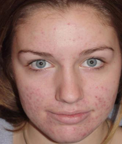 Effects of acne scarring