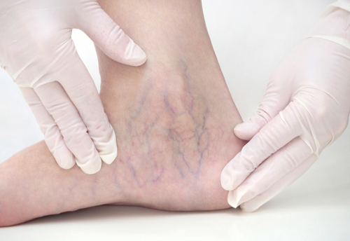 Say goodbye to spider veins this summer!