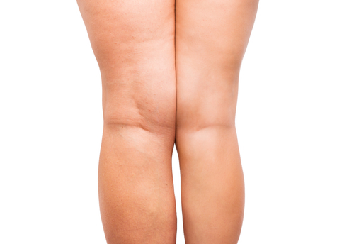 Are Anti-Cellulite Creams Worth It?