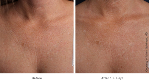 Ultherapy before and after of treatment for decolletage