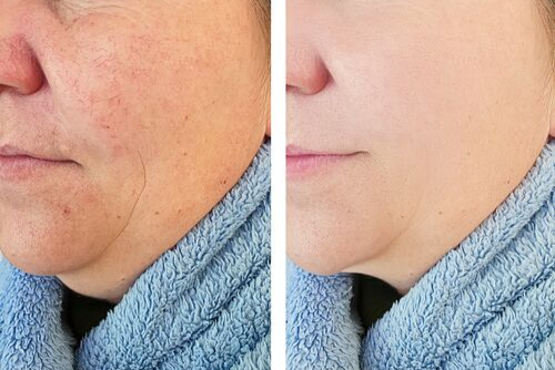 Is the Redness on Your Face Rosacea? | Advanced Dermatology Blog -  Dermatologists in NY and NJ