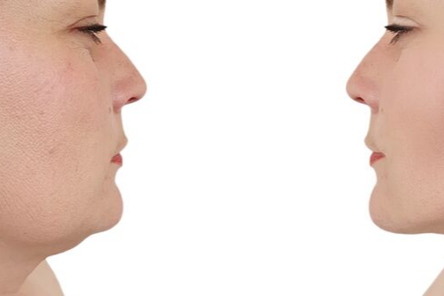 New Aesthetic Treatment KYBELLA Eliminates Double Chin