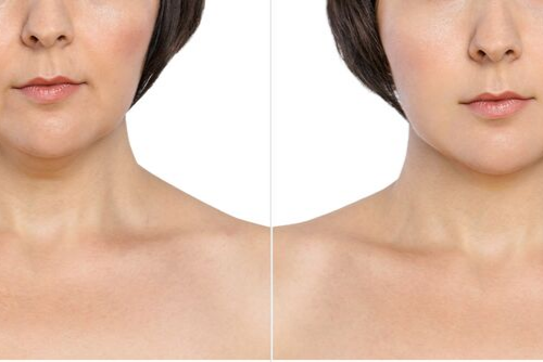 The Facts on Kybella