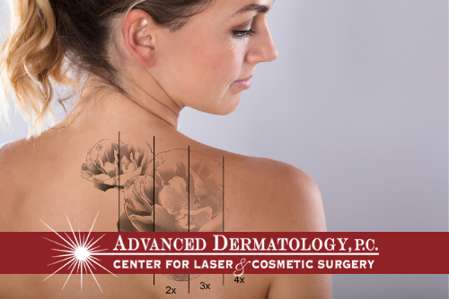 Dr. John Troccoli – Laser Tattoo Removal