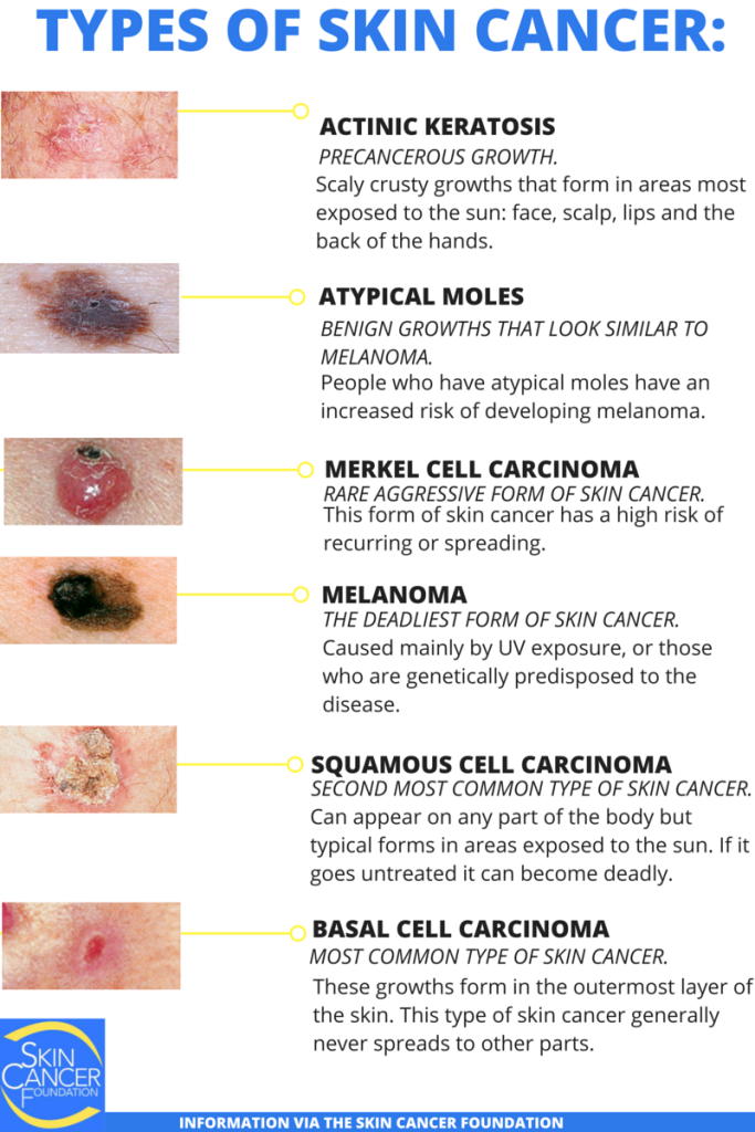 TYPES OF SKIN CANCER-