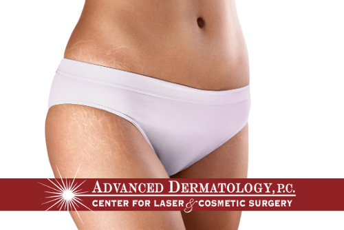 Dr. Fox Discusses Stretch Mark Treatement With Lasers