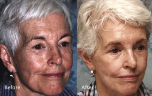 Chemical-Peel-before-123099