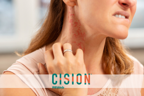 Is Your Red Rash an Allergic Reaction, Skin Irritation or Contact Dermatitis?