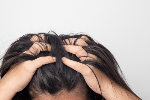 Suffering from One of the Most Common Scalp Conditions?