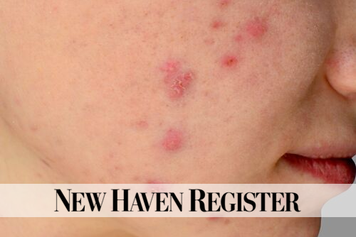 Cystic Acne: Not All Blemishes Are Created Equal