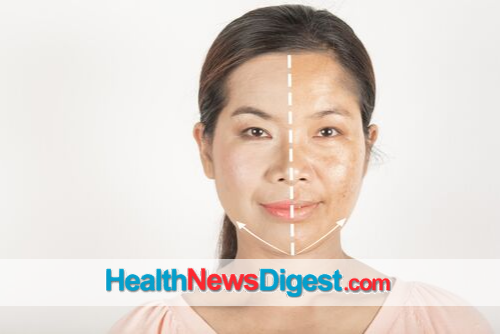 5 Facts About Treating Melasma
