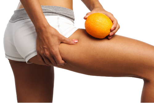 Smoothing Out Cellulite: What Really Works