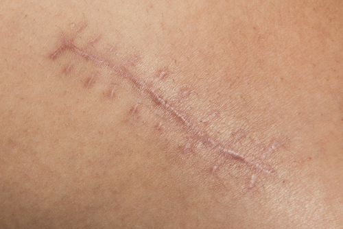 Extreme Scars: Stop a Keloid from Growing