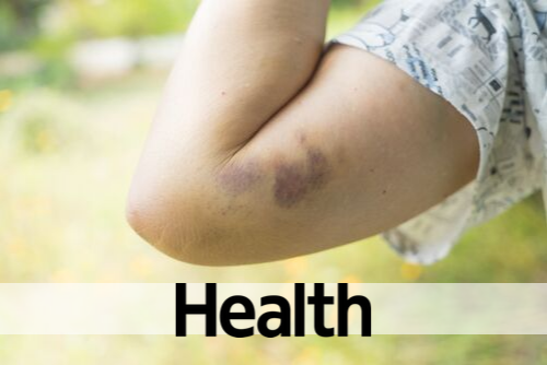 9 Reasons You Bruise So Easily