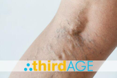 Spider Veins: Addressing the Appearance of Broken Blood Vessels