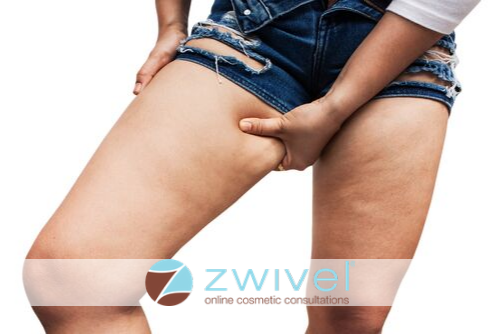 Beating the Chub Rub: How to Prevent Thigh Chafing