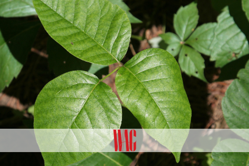 COPING WITH POISON IVY