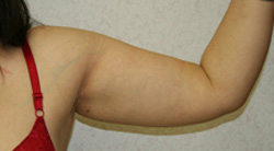 Arm Lift patient after photo