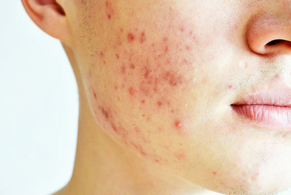 Acne Treatments Albertson, Nassau County Service Photo5