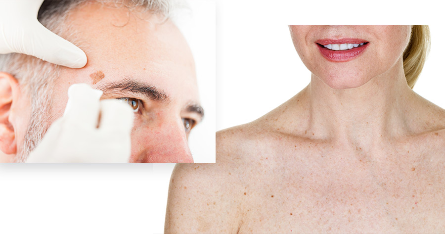 Aging Skin Service Photo9