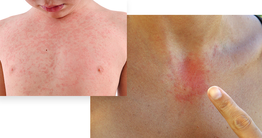 Contact Dermatitis Service Photo1