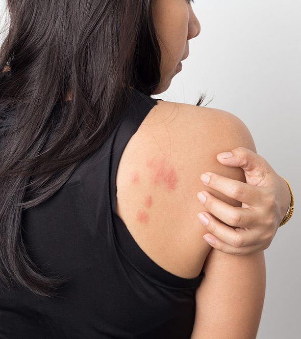 Contact Dermatitis Service Photo2