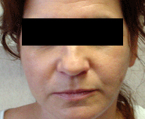 Facelift patient after photo