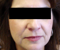 Facelift patient before photo