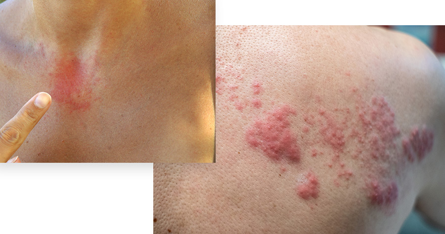 Hives Service Photo1