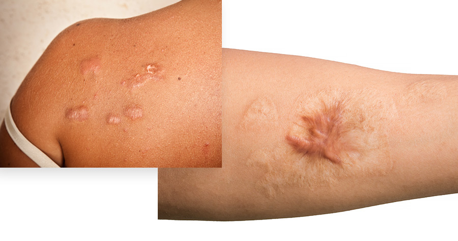 Cryoshape Keloid Treatment Service Photo1