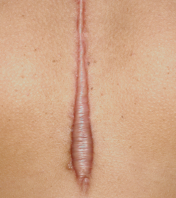Cryoshape Keloid Treatment Service Photo2