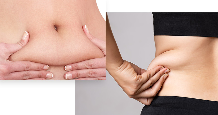 Non-Invasive Fat Removal Service Photo1