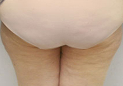 Medial Thigh Lift patient after photo