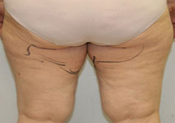 Medial Thigh Lift patient before photo