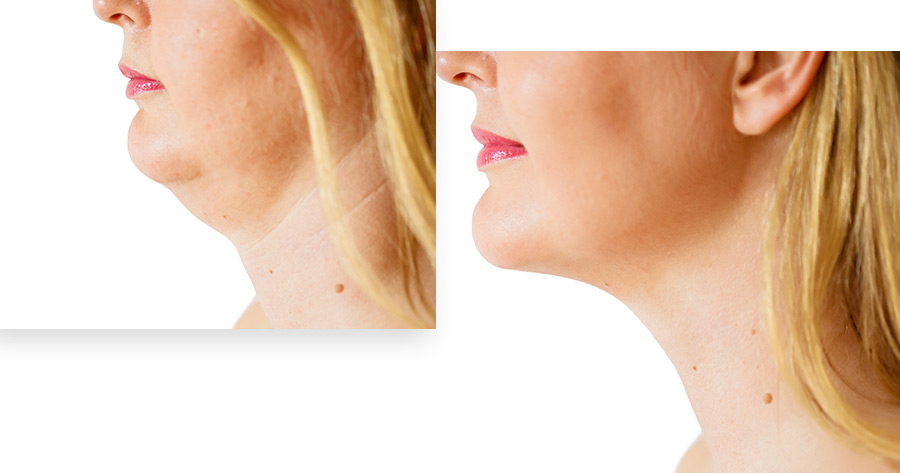 Neck Lift Service Photo1