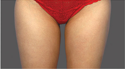Fat Reduction patient after photo