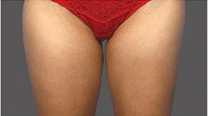 Fat Reduction patient before photo