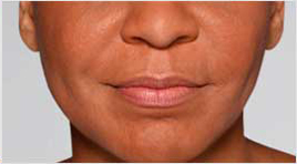 Restylane Defyne patient after photo