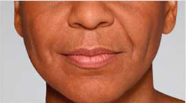 Restylane Defyne patient before photo