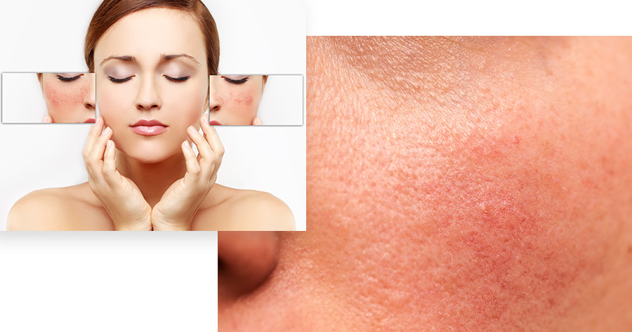 Chemical Peels Service Photo4