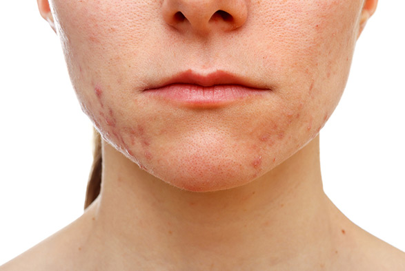 Acne Treatments Albertson, Nassau County Service Photo3