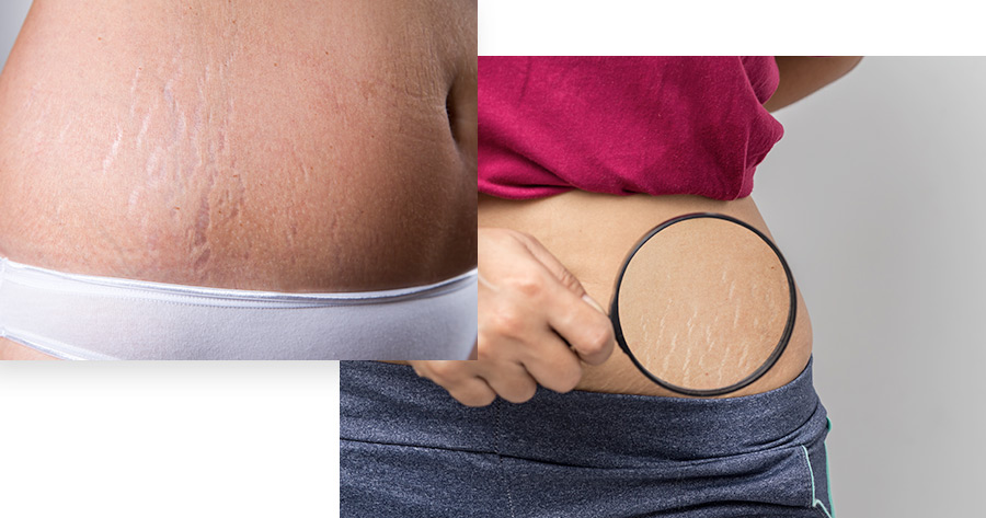 Stretch Marks Service Photo1